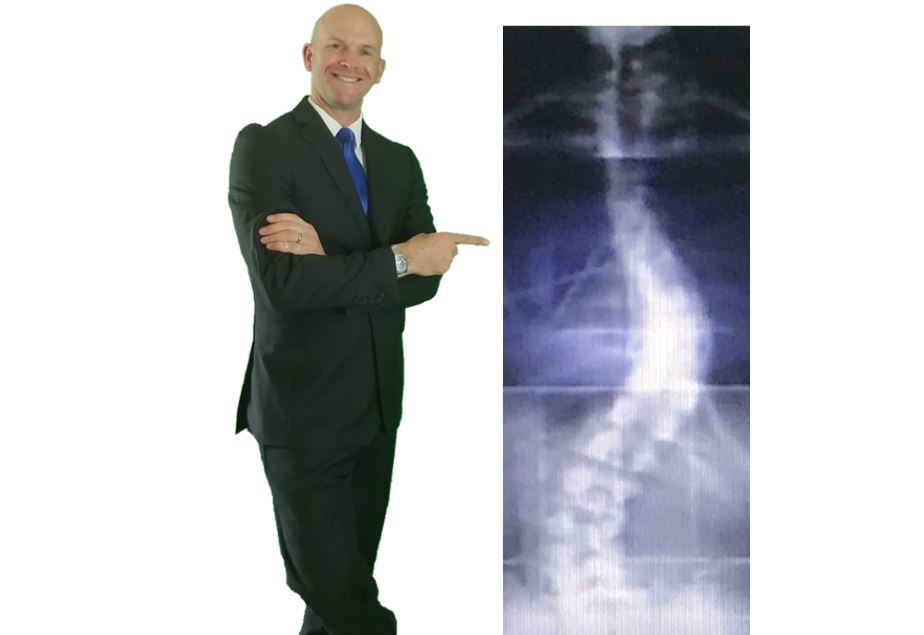 How to STOP Back Pain….even if Your Spine Looks Like Mine