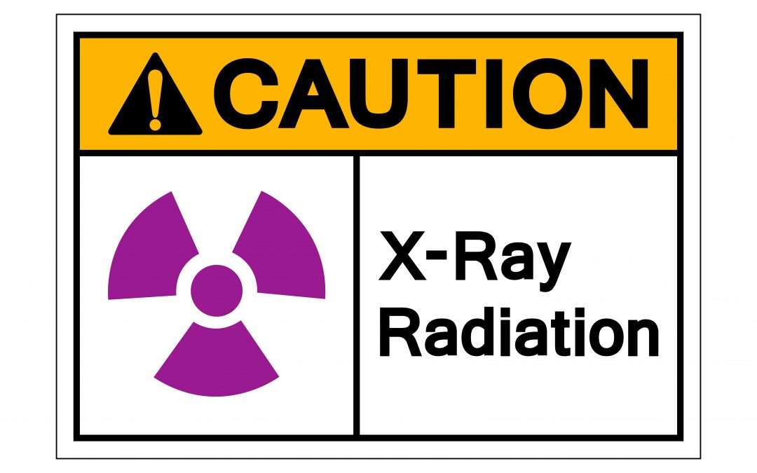 Are X-rays Safe?